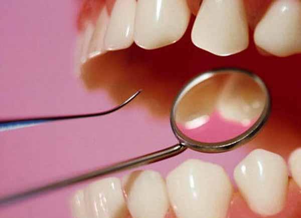 Лечение зубов в Нижнем Новгороде